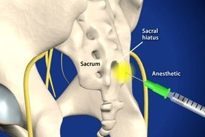 Caudal-Spinal-Epidural-Injection-