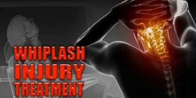 What To Do If You Have been In A Phoenix Car Accident
