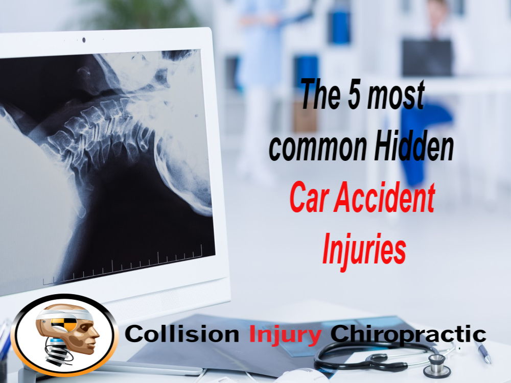 The 5 Most Common Hidden Car Accident Injuries