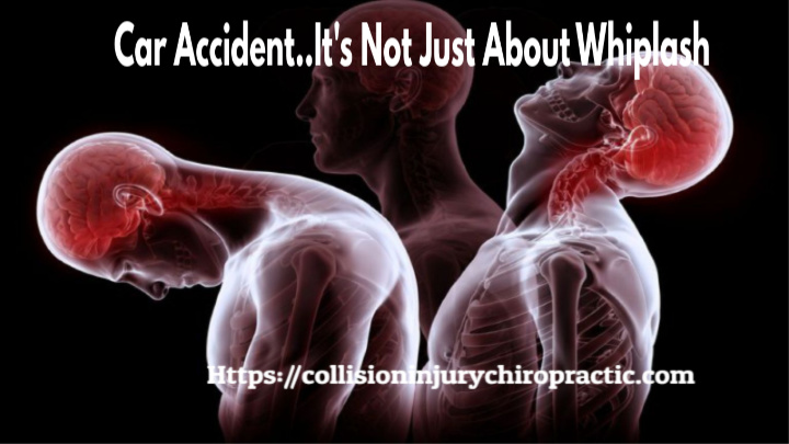 Car Accident It's Not Just About Whiplash