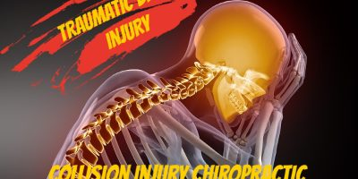 8 Common Signs that you suffered Concussion In your Phoenix Car Accident