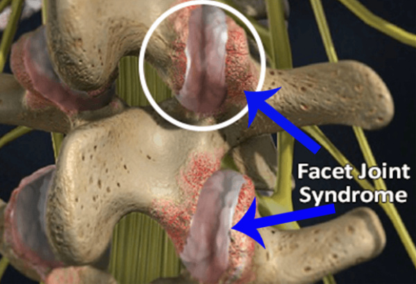 Spinal Facet Joints And Your Neck Pain