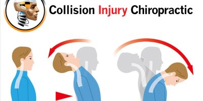 Mid Back Pain From A Whiplash Injury