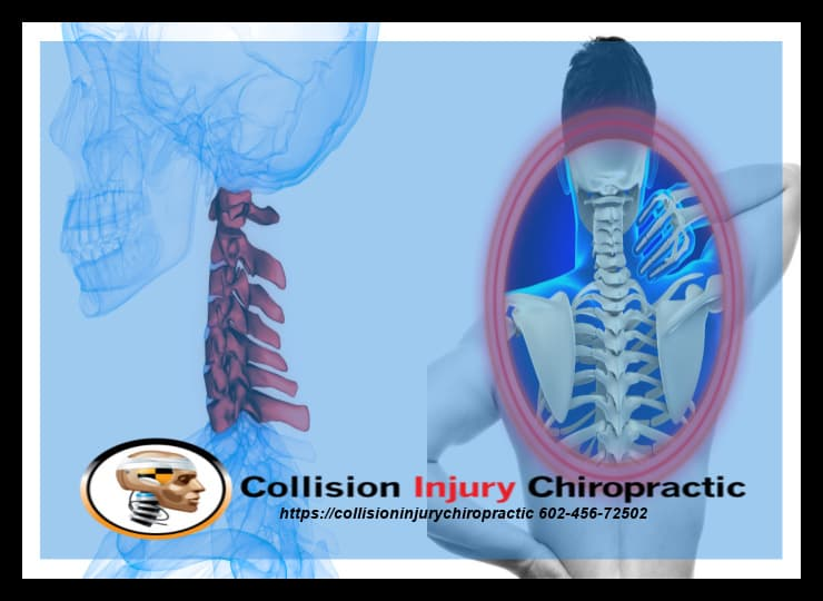 Whiplash-Associated Disorders And Mid Back Pain
